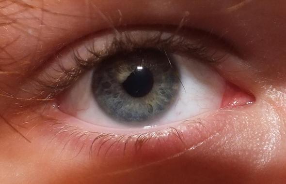Zentrale Heterochromie? (zwei verschiedene Augenfarben)