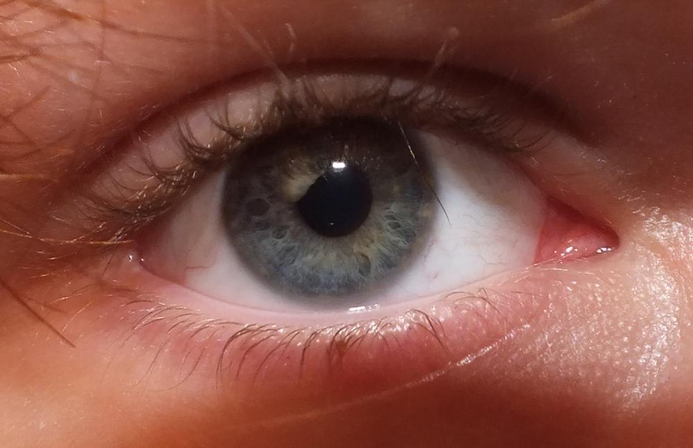 Zwei Verschiedene Augenfarben