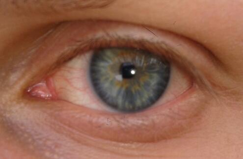 Heterochromie? - (Medizin, Biologie, Augen)