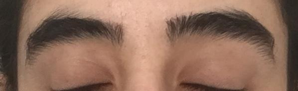 Augenbrauen Zu Dünn