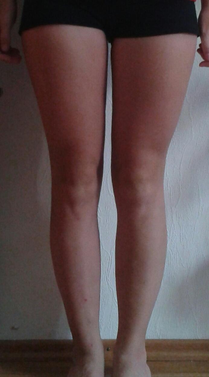 Zu dicke Beine? Wie abnehmen? (Freizeit, Dick)