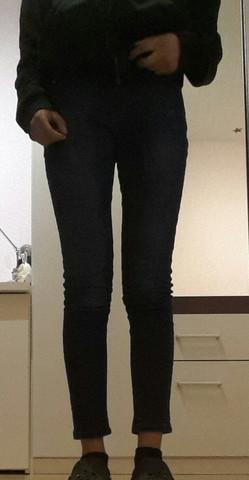 Dünne mann extrem beine Dicke Beine