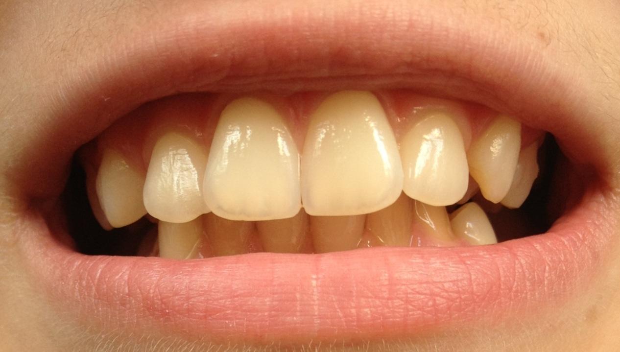Zu gelb oder Normal? Diese Zähne. (Hygiene)