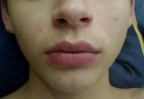 Dicke afrikaner lippen haben warum An den