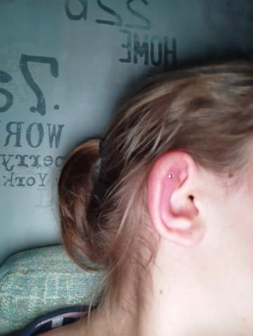 Was helix hilft entzündet piercing Bauchnabelpiercing entzündet: