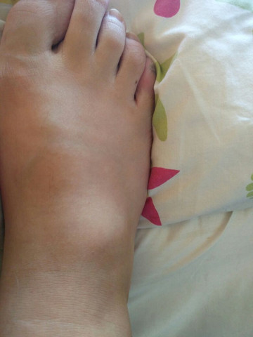 Le fuß :D - (Arzt, Füße, geschwollen)