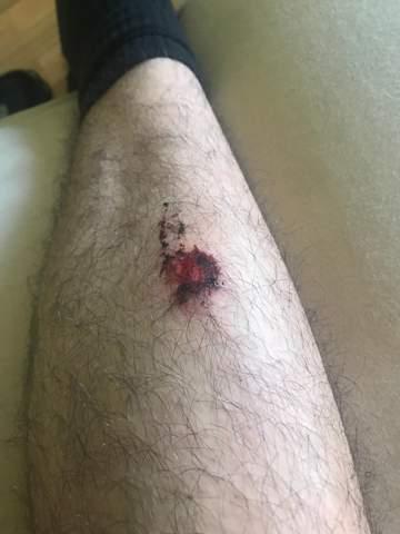 Zum Arzt müssen wegen Beinverletzung?