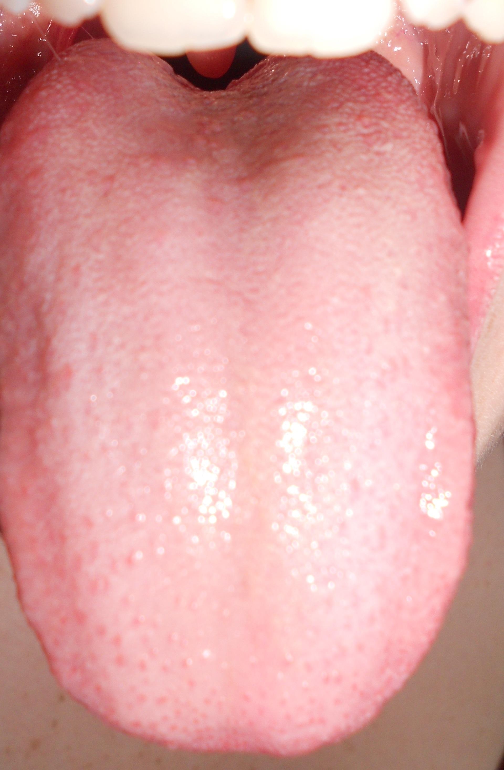 Zunge weiß belegt rote Punkte (Gesundheit, Arzt, Krankheit)