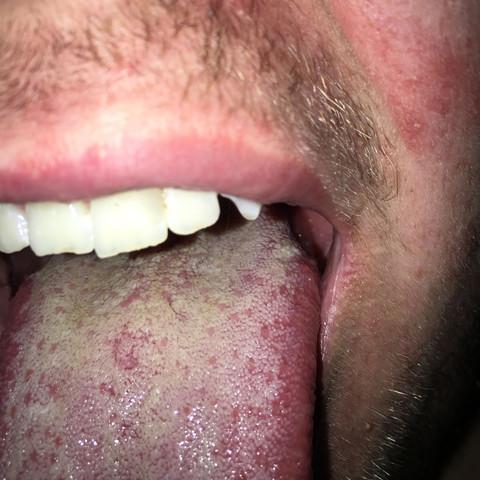Zungenbelag? - (Arzt, Zunge, Nicht dchlimm)