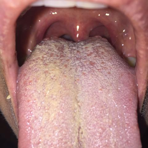 Apr. 2019. rote Flecken, mit Flüssigkeit gefüllte Bläschen und kleine, schmerzhafte Geschwüre (sog.