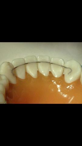 Zungenbändchen mit Zahnspangen-draht