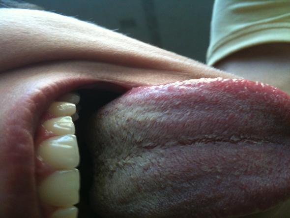 Hässliche Zunge - (Arzt, Küssen, Pilze)