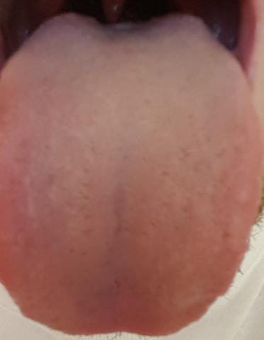 Zungenbelag - (Gesundheit, Rat, Zunge)