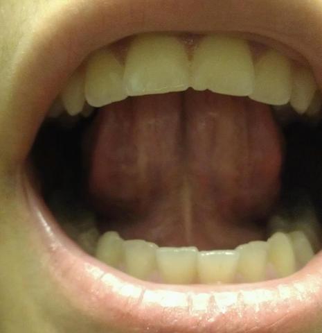 Der zunge zungenpiercing schmerzen unter Schmerzen in