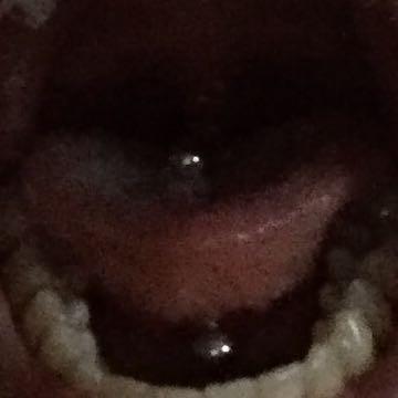 ist das sehr schief?  - (Piercing, Zunge, Zungenpiercing)