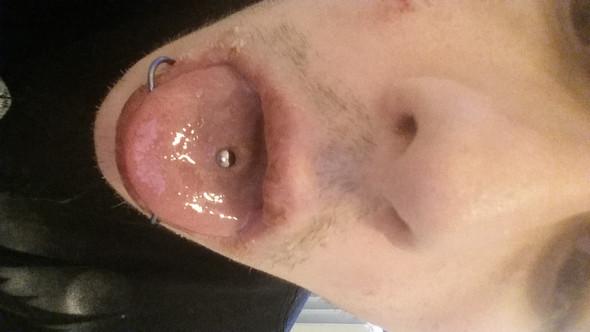 Zungepiercing zu weit hinten gestochen?