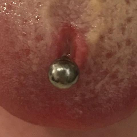 Zungepiercing?Ist das schlimm? was soll ich machen?